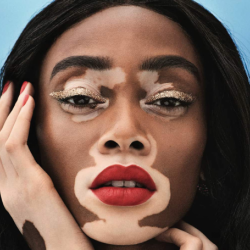 Winnie Harlow Net Worth | Wiki, Biography, Career, Skin, Parents, Relationship